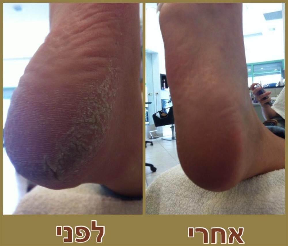 טיפול בעור יבש,כף הרגל עם עור קשה,טיפול בצפורן חודרנית,טיפול ביבלות פנימיות